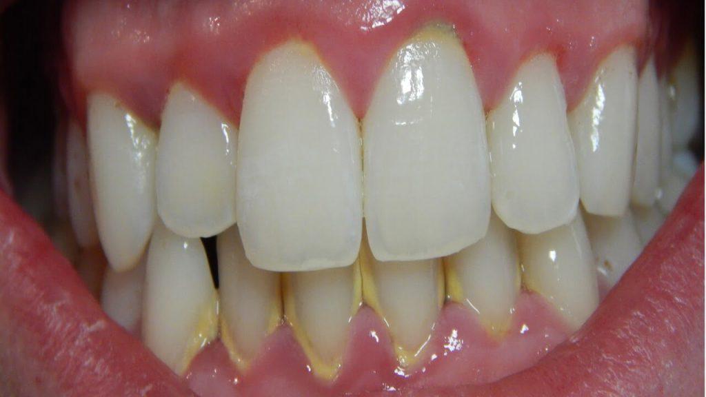merawat gusi bengkak - gingivitis