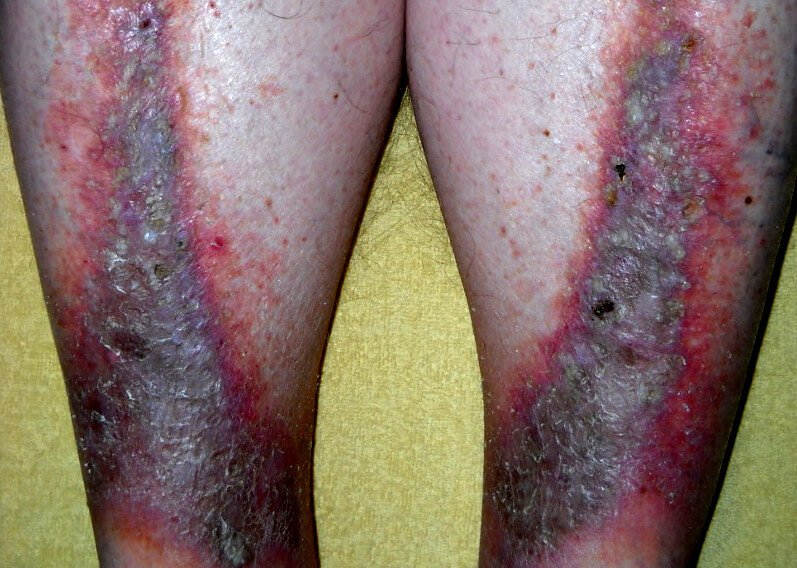 gambar jenis ekzema-dermatitis stasis